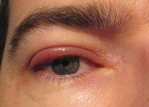 Salud Visual XVII – Blefaritis